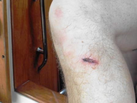 Richard's damaged knee